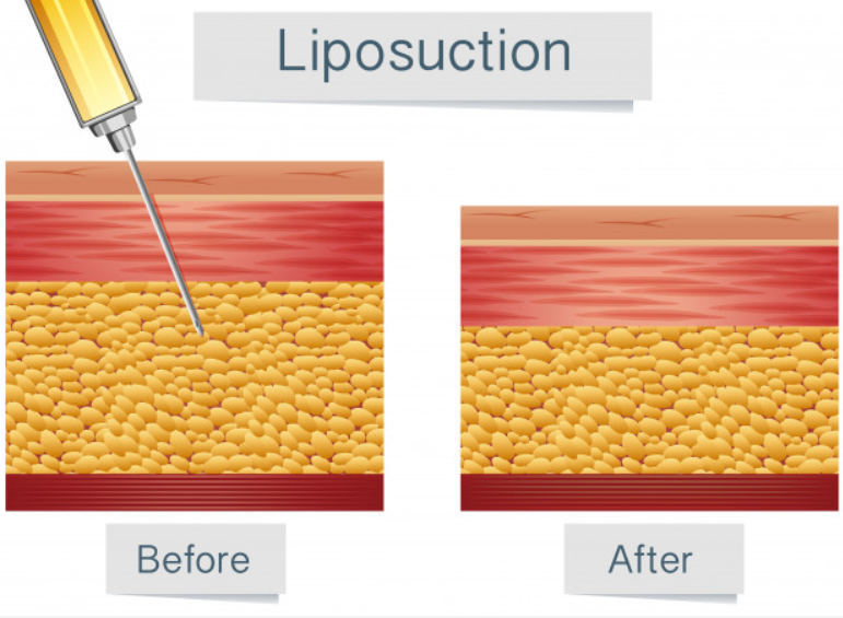 pros of liposuction
