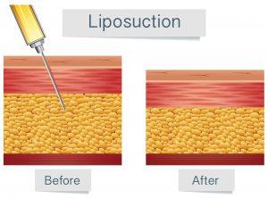 Liposuction, get rid of loose skin