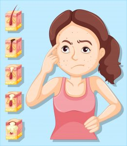 popping pimple adverse to skin dangerous infection may penetrate into blood