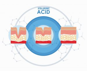 Does Your Skin Need Hyaluronic Acid? - nybeautymagazine