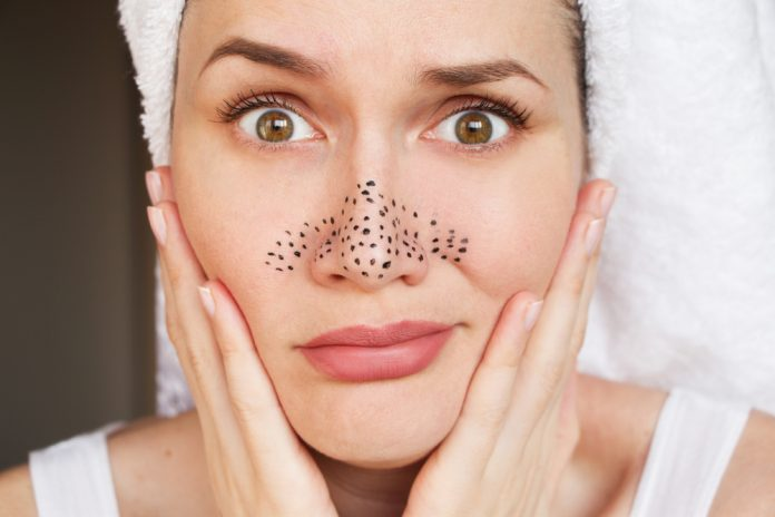 causes of blackheads easy natural ways eliminate get rid of them