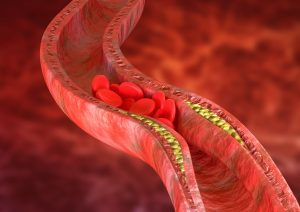 trans-fatty acids influence on your cholesterol levels, causing atherosclerosis