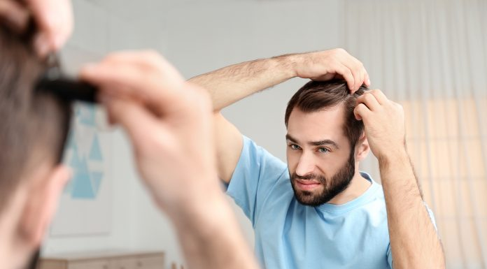 male hair loss, baldness, prevent hair loss