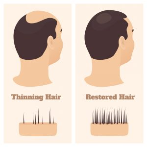 mail hair loss treatment and causes