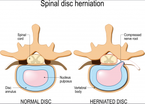 herniated spinal disks, spinal hernia