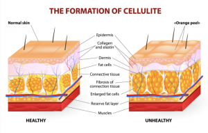 myths and truth about cellulite, how to treat cellulite