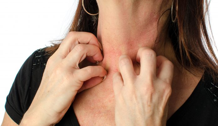 Itchy skin, red spots on the skin, skin reaction on stress, nerve endings in the skin,