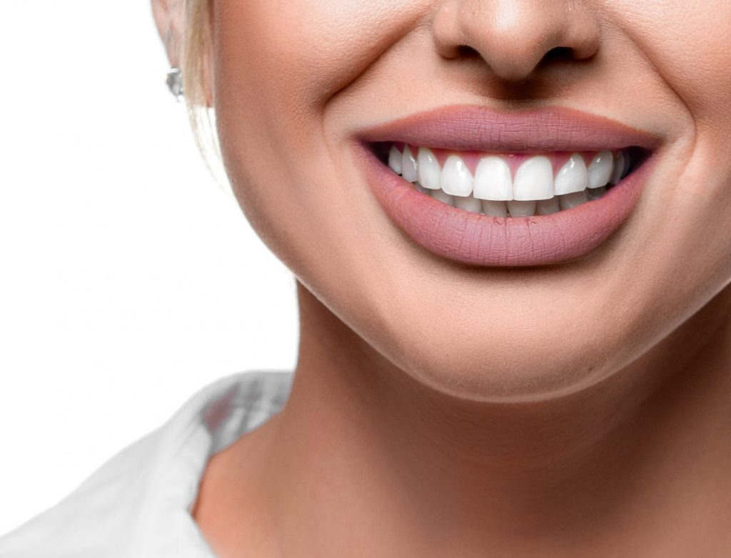 Secrets to a Hollywood smile