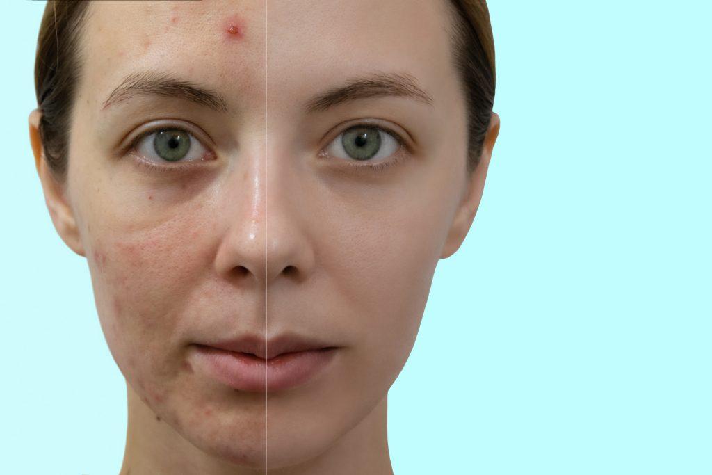 Retinol against acne, remedy for acne, adapalene, sebum and renew the epidermis, inhibit the production of sebum , renew the epidermis